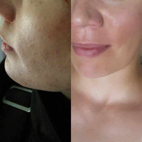 skin_b4_after